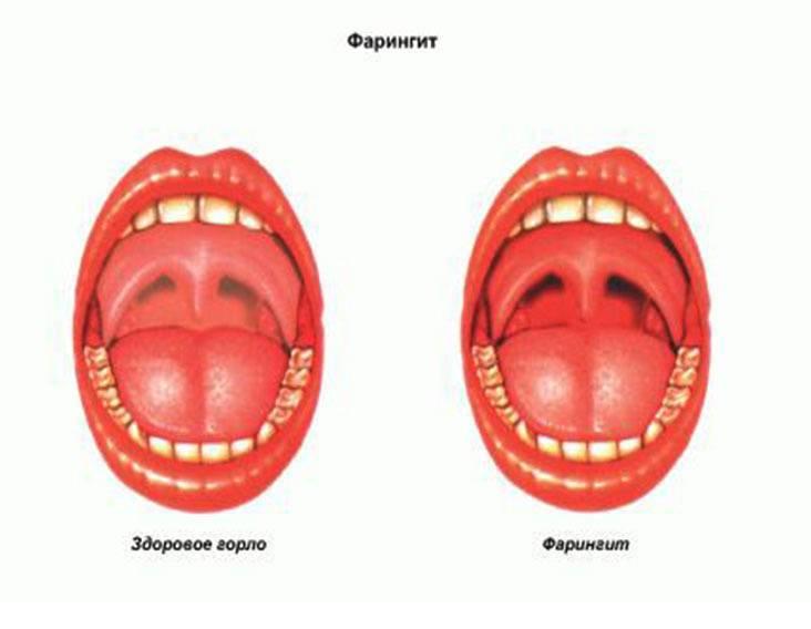 Рыхлое горло у ребёнка: что это значит и чем его лечить pulmono.ru рыхлое горло у ребёнка: что это значит и чем его лечить