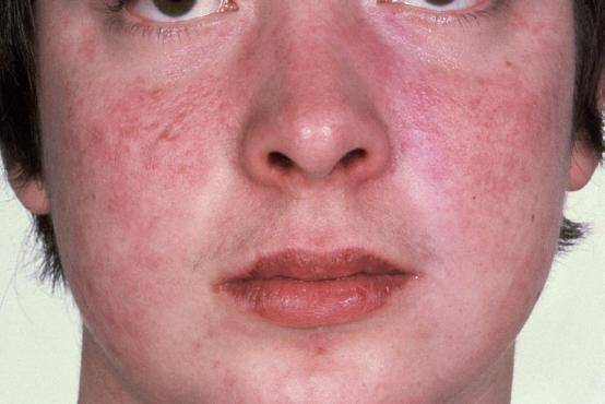 Сыпь у носа и лбу на лице ребенка