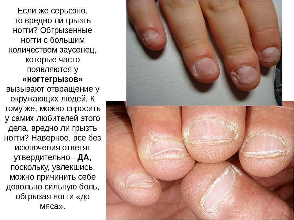 Простые способы, которые помогут отучить ребенка грызть ногти на руках