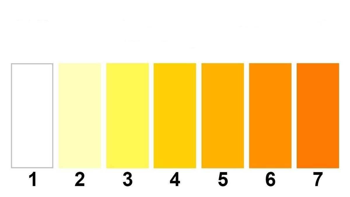 Ярко желтая моча у ребенка — почки