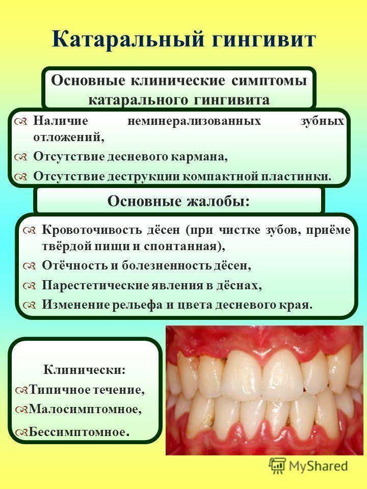 Гингивит: фото, особенности протекания и лечения заболевания у детей, советы стоматологов