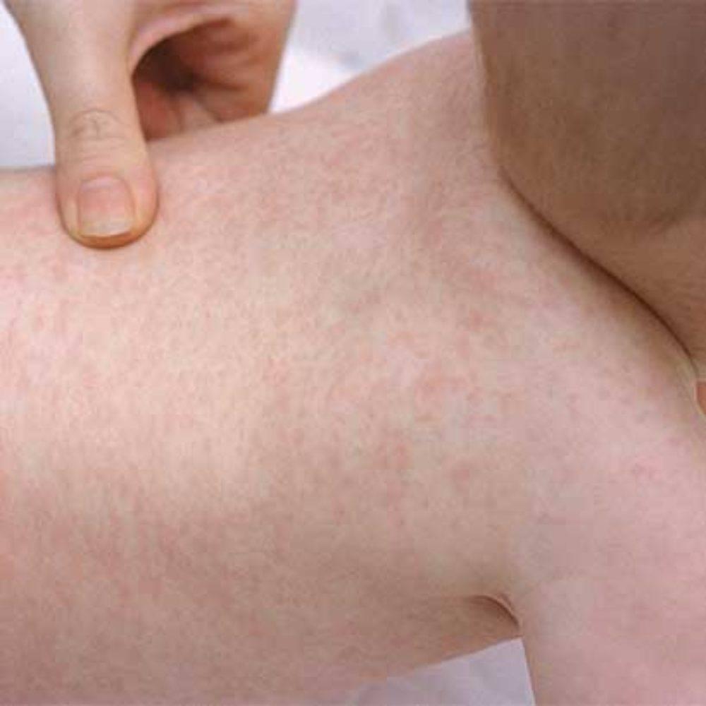 Детское заболевание розеола: фото симптомов, лечение болезни у детей и её последствия