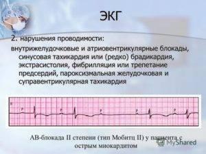 Нарушение внутрижелудочковой проводимости на экг у ребенка что это значит