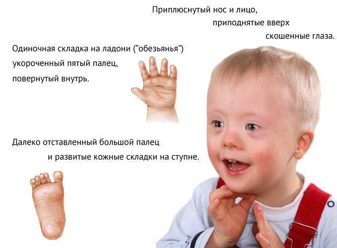 Почему рождаются дети с синдром дауна: фото и признаки у новорожденных