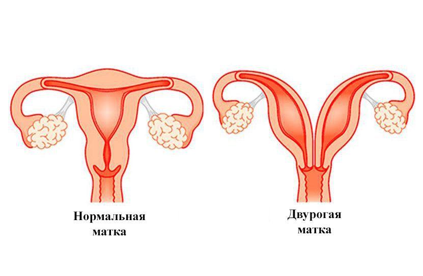 Беременность и роды при опущении шейки матки