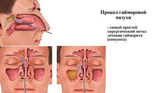 Лечение гайморита у детей в домашних условиях народными средствами pulmono.ru лечение гайморита у детей в домашних условиях народными средствами
