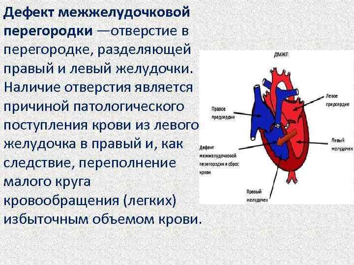 Перегородка в сердце у новорожденного - здоров.сердцем