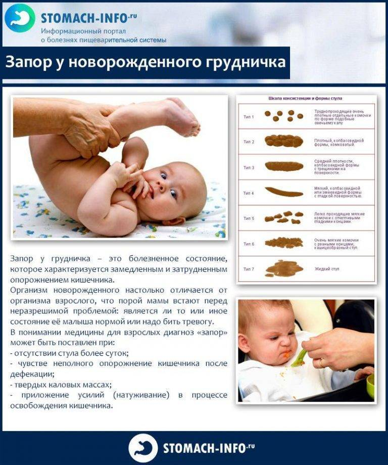 Запор у новорожденного, грудничка при искусственном вскармливании: что делать?