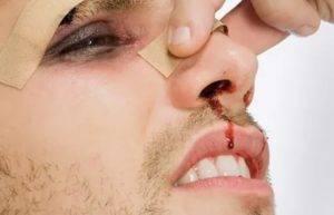 Разбитая губа у ребенка, девушки изнутри: что делать, как снять опухоль от ушиба, лечение рассечения и порезов