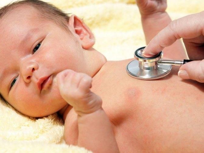 Кашель у грудничка — причины возникновения сухого, влажного и аллергического, лечение препаратами и осложнения