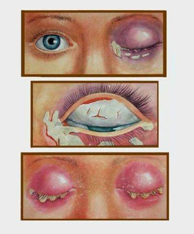 Что делать, если у грудного ребенка гноятся глаза
