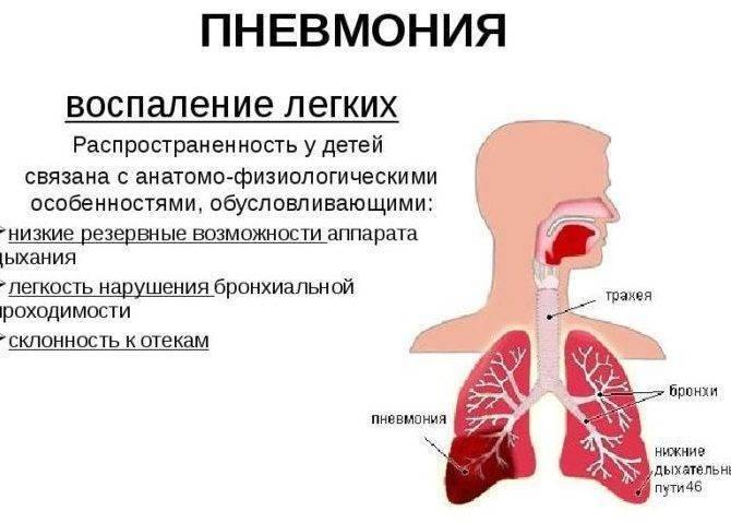 Как лечить пневмонию у взрослых в домашних условиях