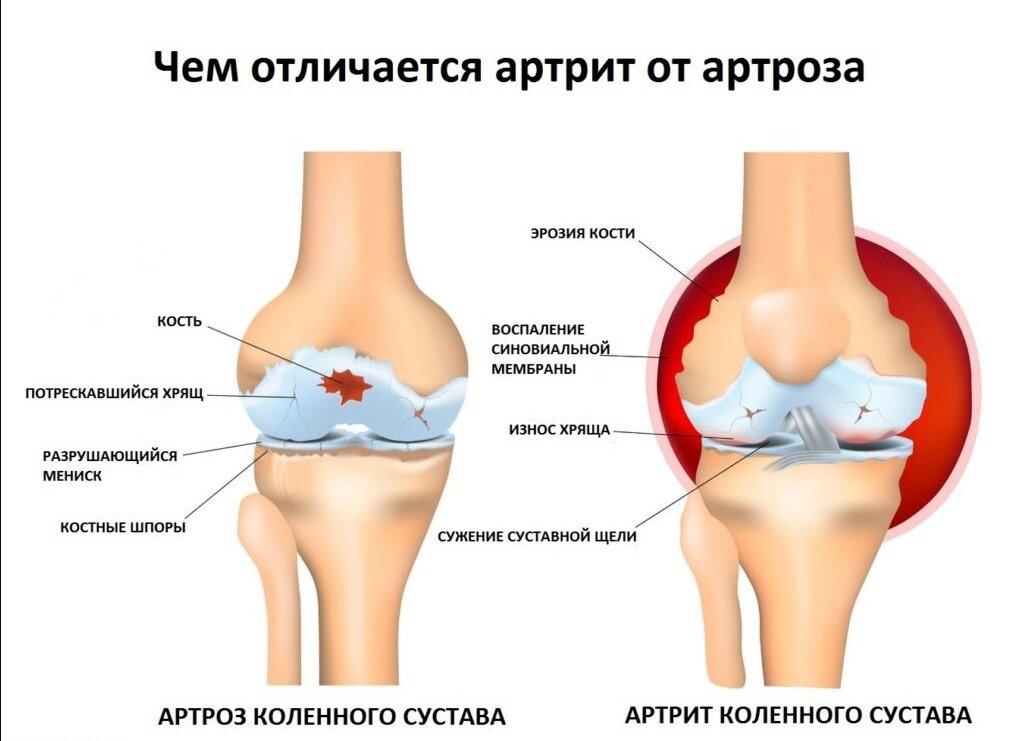 Артрит коленного сустава у детей: причины возникновения, симптомы и лечение | заболевания | vpolozhenii.com
