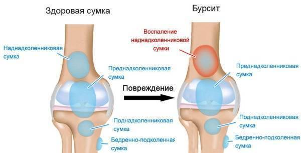 Болят колени суставы после беременности