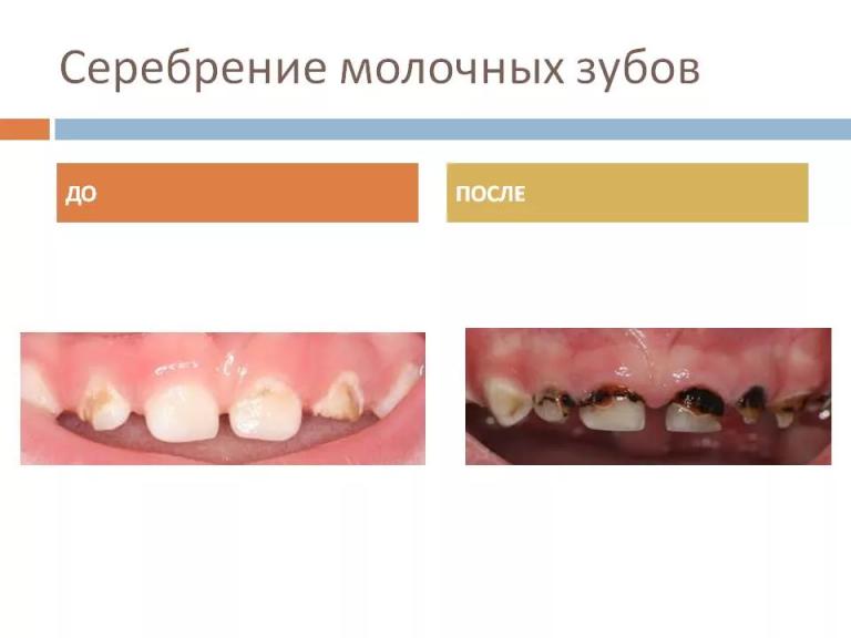 Серебрение молочных зубов у детей – за и против, отзывы, цена, фото, альтернатива