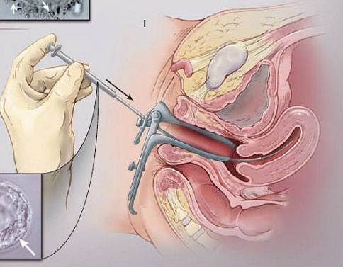 Что такое гистероскопия, каковы особенности процедуры перед эко, когда ее можно делать после неудачной подсадки?