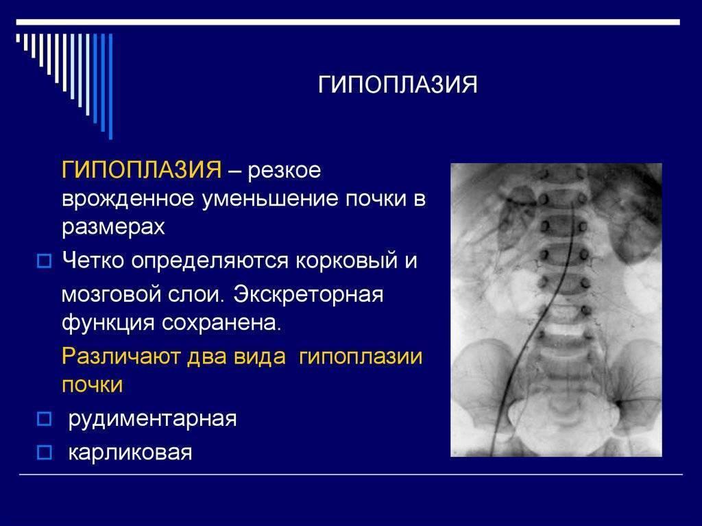 Гипоплазия левой почки у ребенка лечение - все про почки