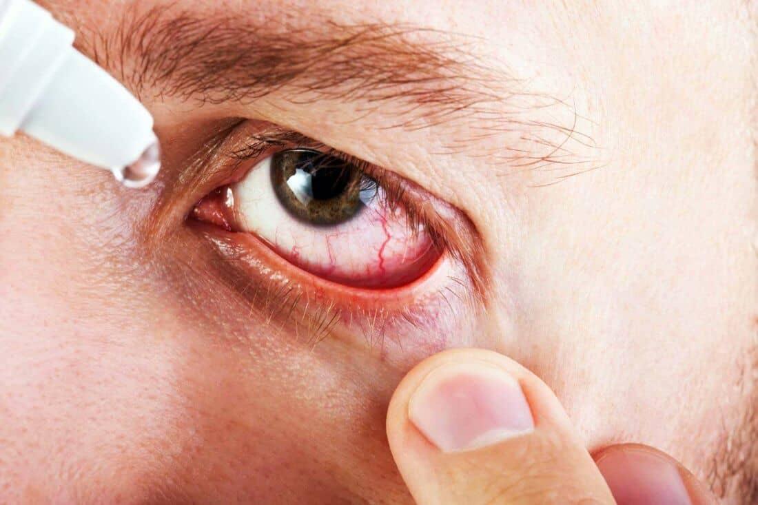 Глазные капли при лопнувшем сосуде в глазу - список лучших