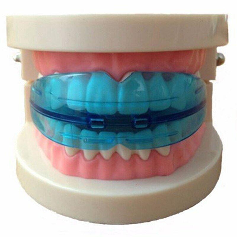 Зубная пластинка ребенку: когда лучше ставить, эффективность, недостатки