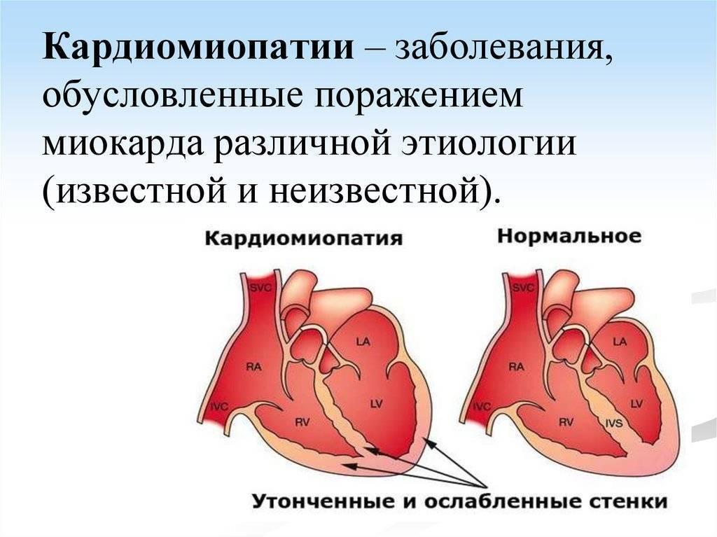 Функциональная кардиопатия у детей — что это такое