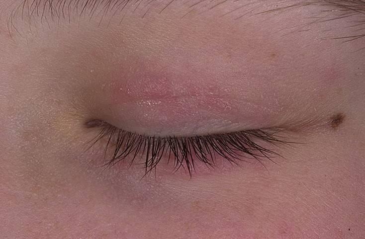 Прыщи на глазу на нижнем или верхнем веке, причины, лечение