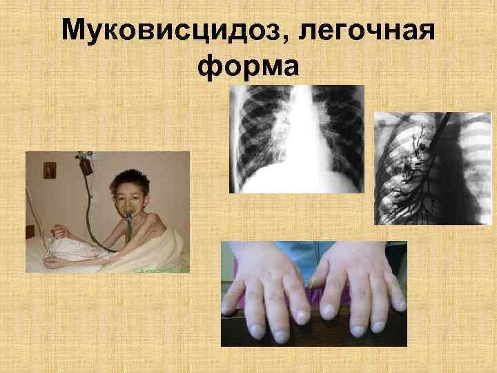 Муковисцидоз у детей: симптомы и лечение
