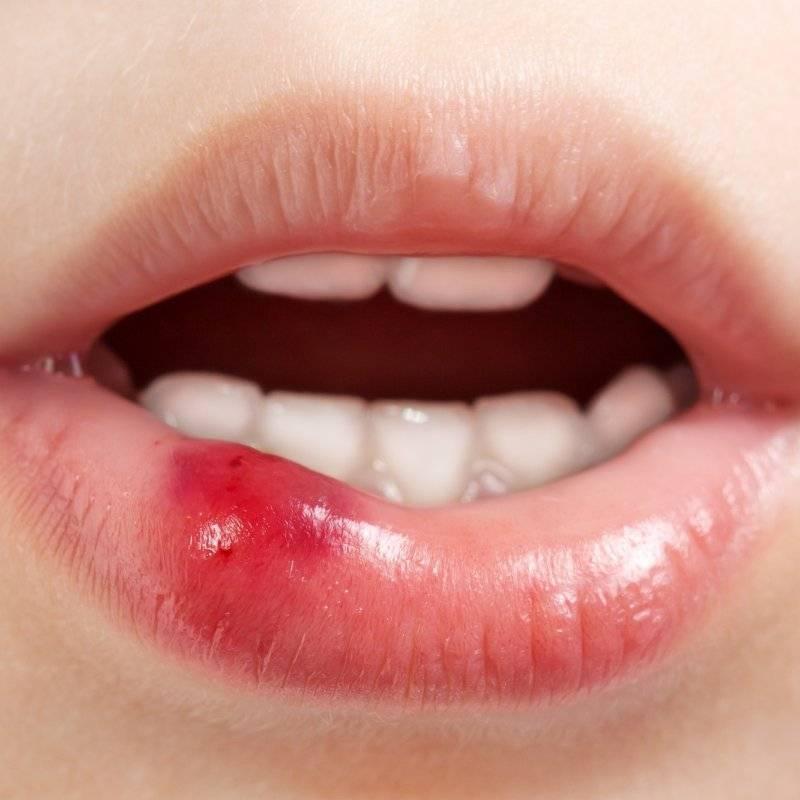 Стоматит у детей во рту: лечение в домашних условиях, симптомы, разновидности