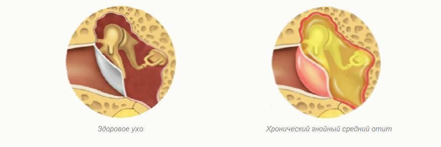 Хронический отит у детей . причины возникновения отита у детей, симптомы и методы лечения отита