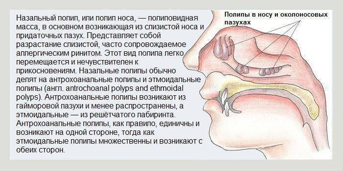 Полипы в носу: симптомы и лечение. причины и методы терапии