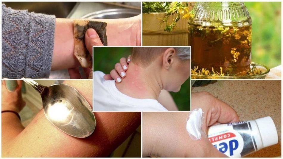 Укус мошки у ребенка - как снять опухоль, покраснение и отек от укуса комара, клопа, пчелы или осы