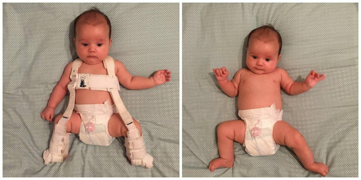 Дисплазия тазобедренных суставов у детей до года (новорожденных): лечение и признаки с фото
