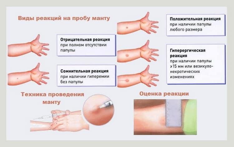 Можно ли делать манту при простуде, насморке или кашле и как это повлияет на результат