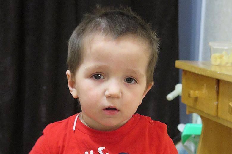 Лечение злокачественного смертельного мрамора костей, остеопетроз (мраморная болезнь) у детей: симптомы - все о суставах