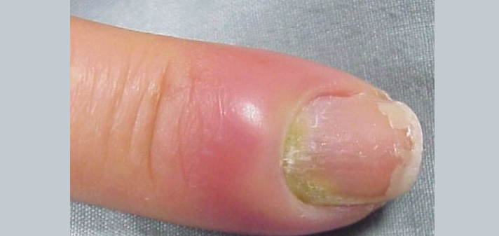 Нарывает палец возле ногтя на руке, что делать и как лечить