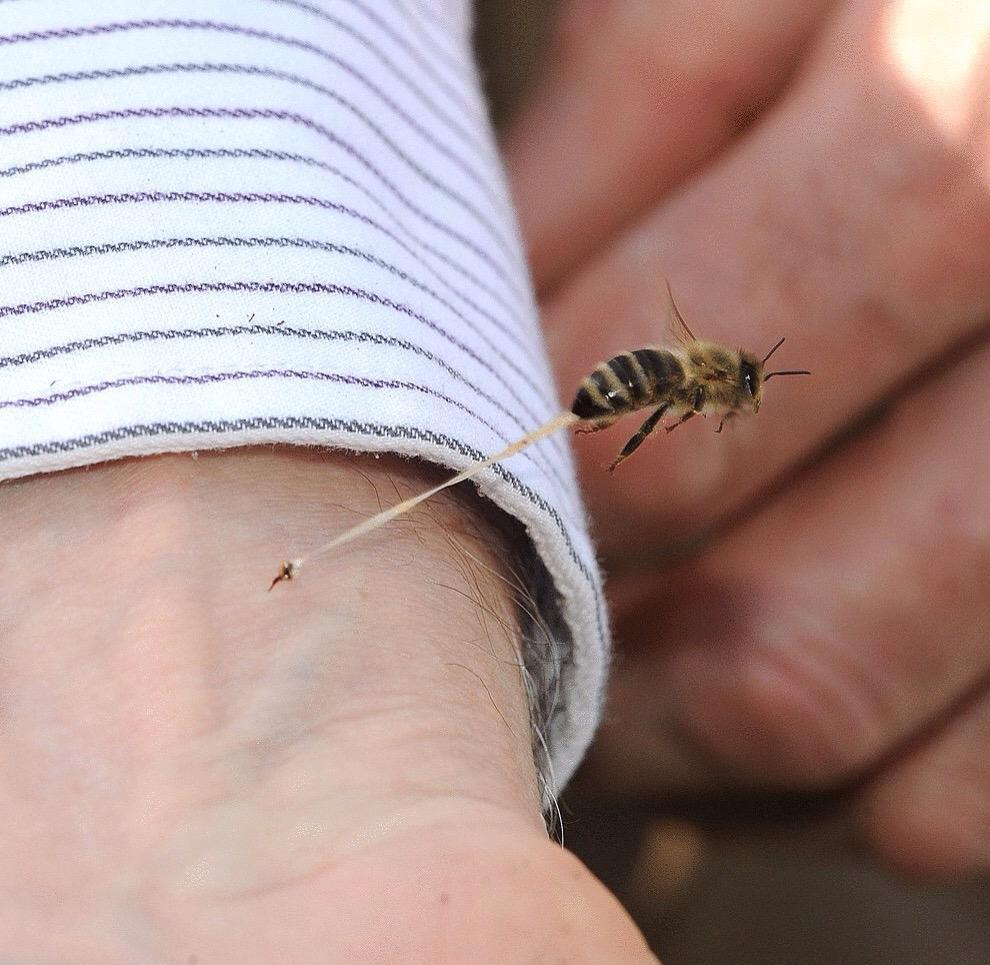 Укус пчелы: первая помощь в домашних условиях