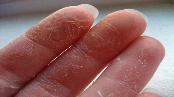 Почему у ребенка между пальцами ног слезает кожа – 13 возможных причин