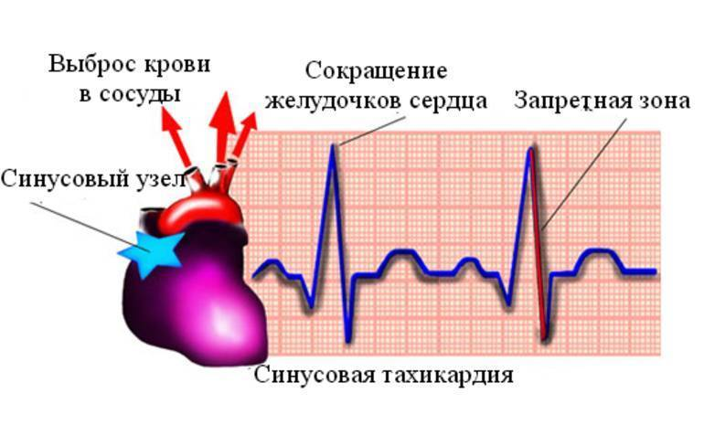 Синусовая тахикардия у ребенка: результат на экг, легкая форма у ребенка от 1 до 7 лет
