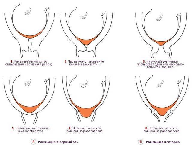 Как делается цервикометрия при беременности: что это за процедура