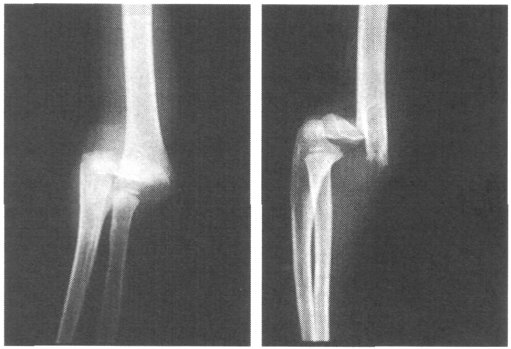 Чрезмыщелковый перелом плечевой кости: причины, симптомы, чем сопровождается, диагностика, лечение, последствия, реабилитация