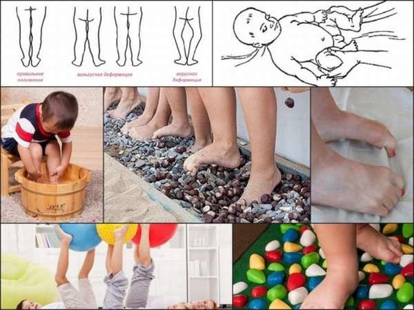 Лфк при плоскостопии у детей: упражнения