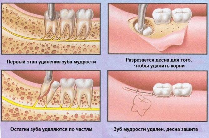 Удаление постоянных зубов у детей — когда и как удаляют?