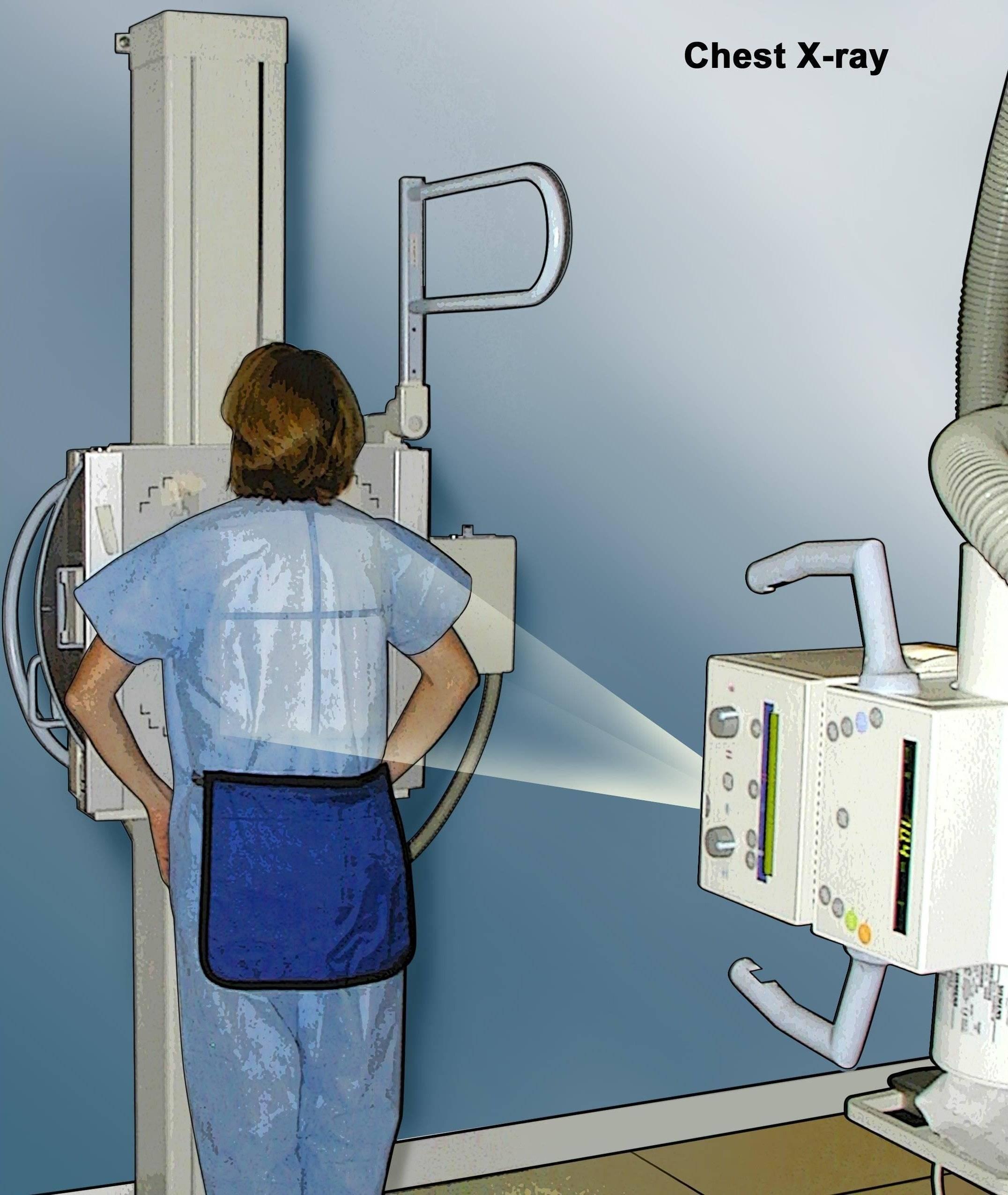 Как часто можно делать рентген ребенку: вред, последствия (видео комаровского)