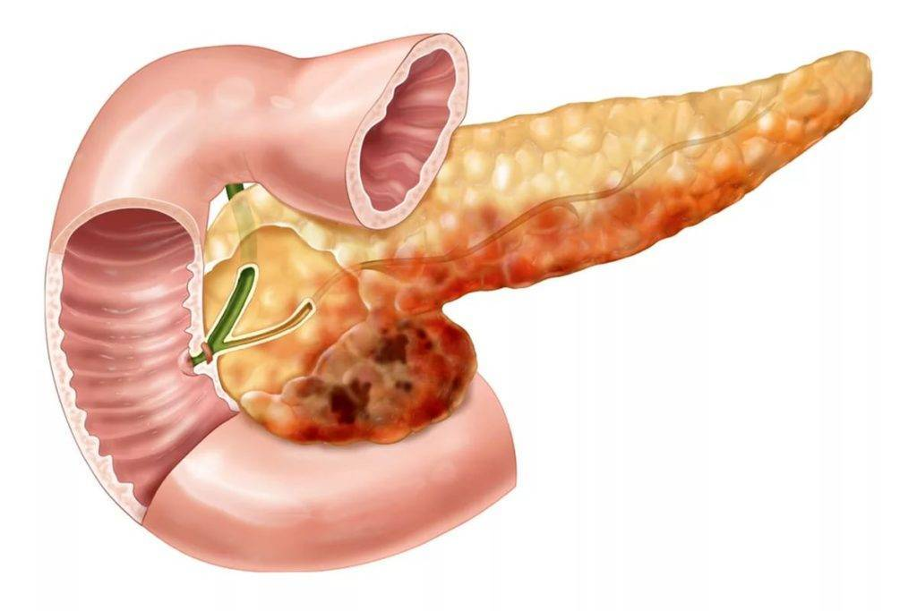 Воспаление поджелудочной железы симптомы лечение диета у детей