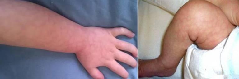 Мраморная кожа у грудничка: причины, мраморность при грудном