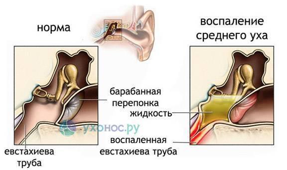 Тубоотит симптомы лечение. тубоотит - что это такое, симптомы и диагностика, лечение и профилактика