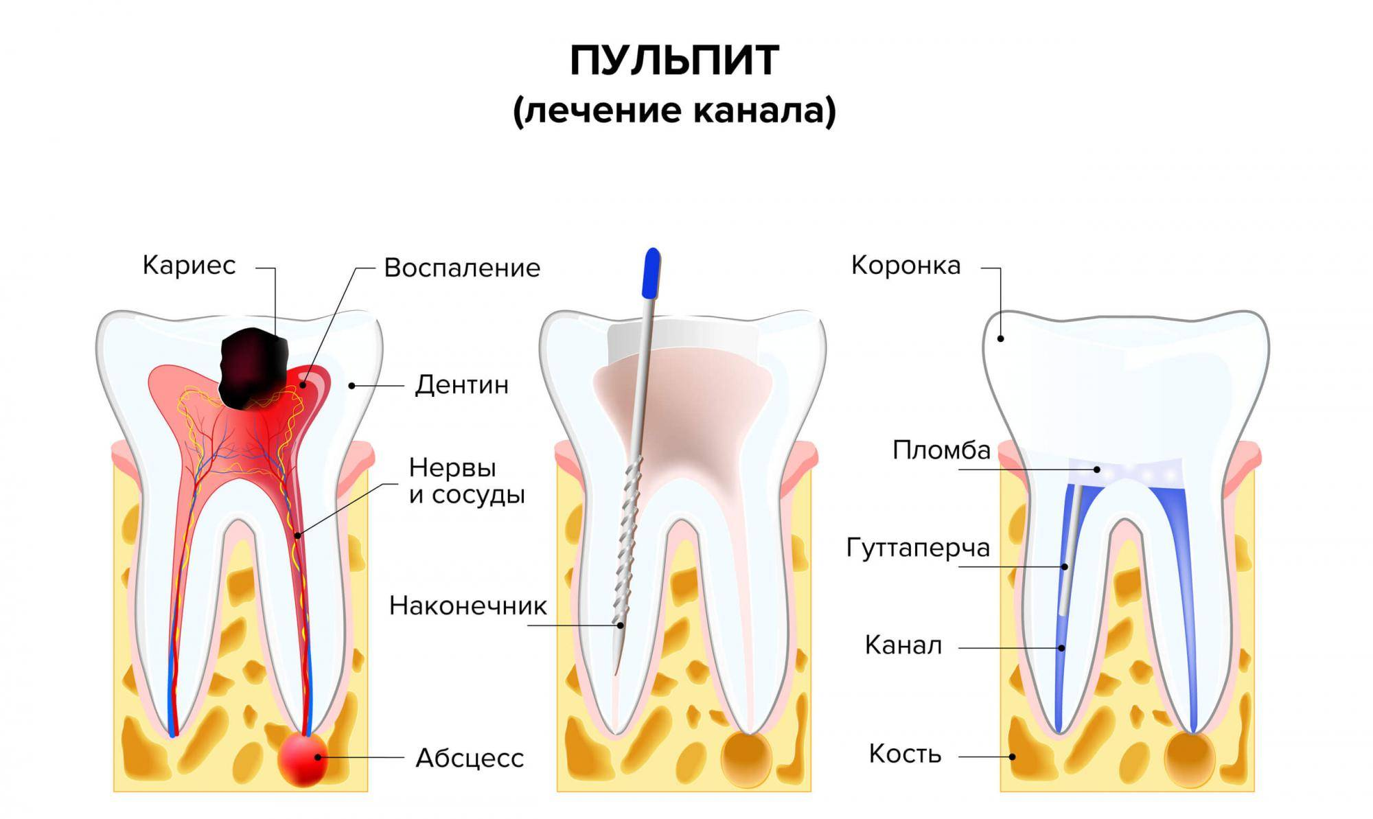 Обезболивающее ребенку 6 лет. зубная боль у ребенка: чем снять. когда врач может назначить лекарства