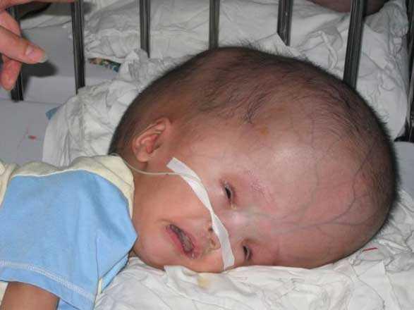 Отек головного мозга у новорожденных: причины, симптомы, лечение