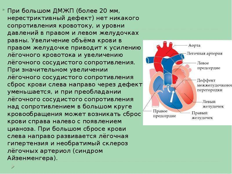 Дефект межжелудочковой перегородки сердца (дмжп): причины, проявления, лечение
