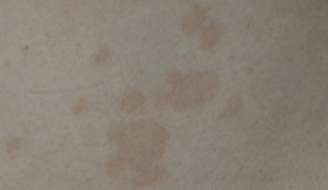 Красные пятна на теле у ребенка: что делать, если сыпь по всему телу шелушащимися пятнами чешется и способы лечения