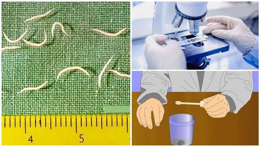Анализ на энтеробиоз: соскоб, мазок, кал. как сдавать. справка. цена. фото. видео